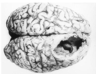 Личинка овода, ковыряющаяся в мозгах человека